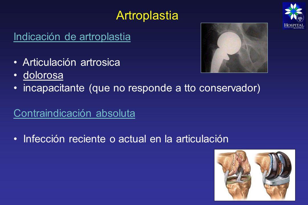 Artroplastia Fallas de las prótesis Aflojamiento (dolor) Aflojamiento que puede ser: Aséptico: mala alineación de los componentes (mecánico) o evolución esperada por el tiempo Séptico: Infección protésica REVISION