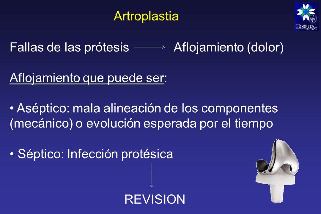 Artroplastia Prótesis de hombro