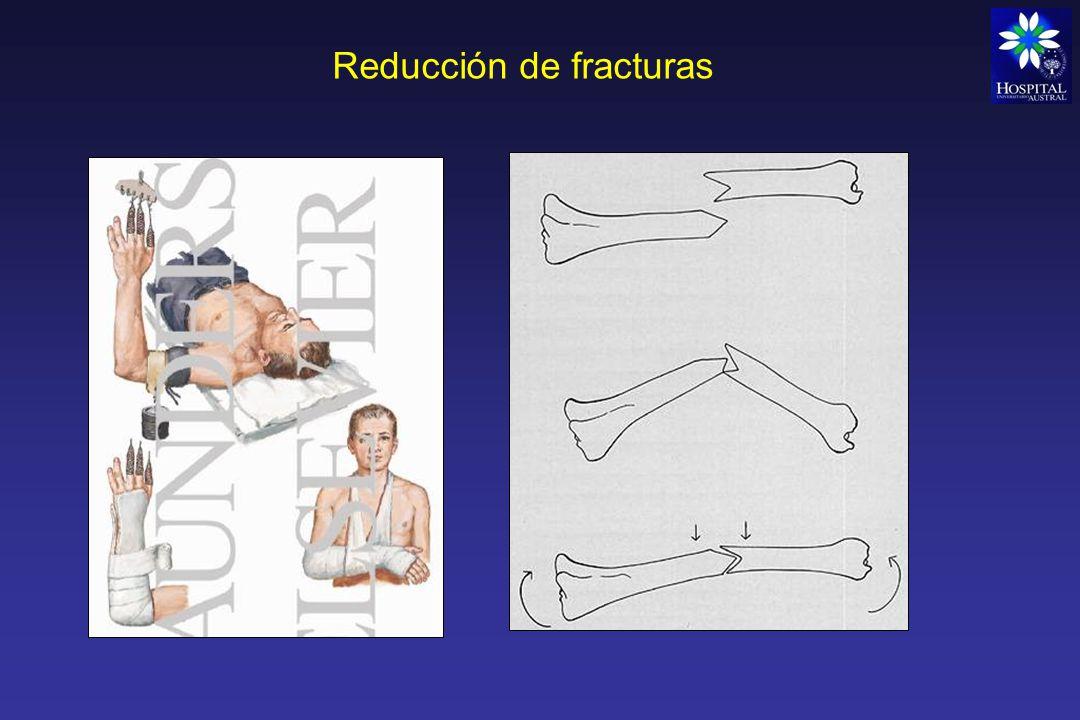 Osteosíntesis Se usa como método de fijación interna.