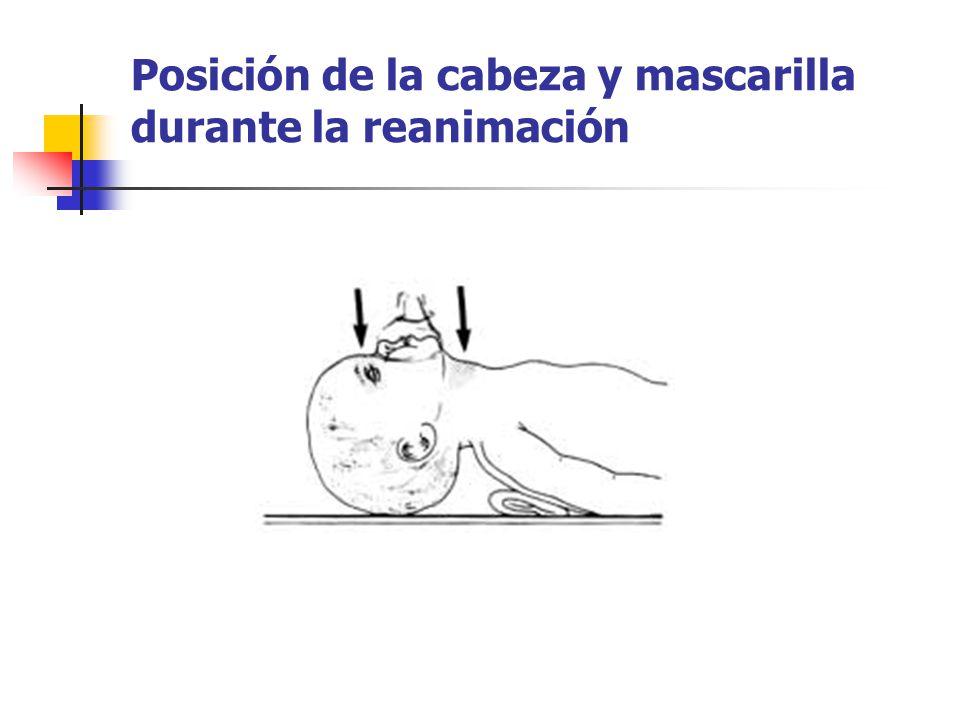 Posición de la cabeza y mascarilla durante la reanimación