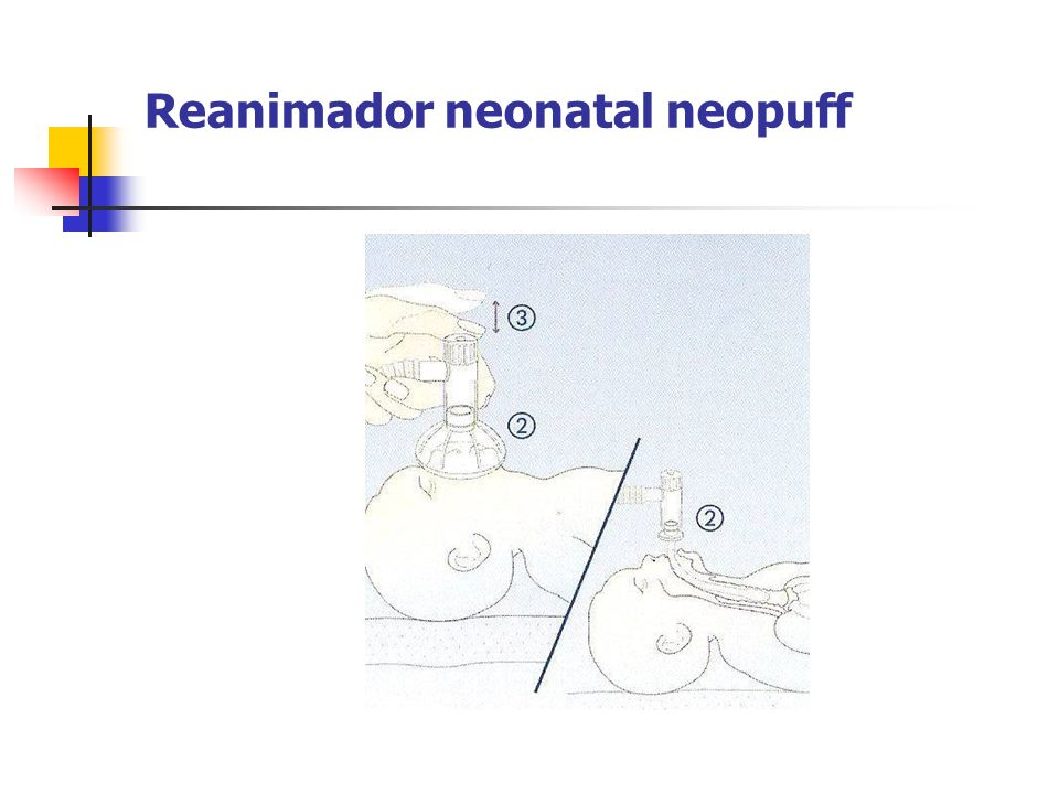 Reanimador neonatal neopuff