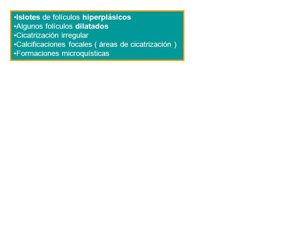 Islotes de folículos hiperplásicos Algunos folículos dilatados Cicatrización irregular Calcificaciones focales ( áreas de cicatrización ) Formaciones