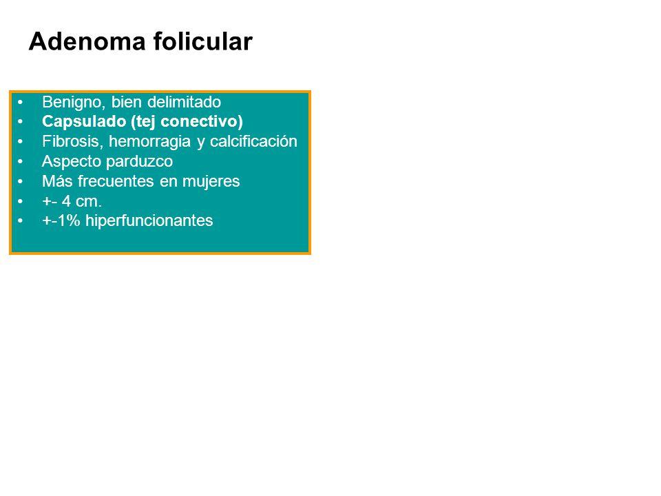 Adenoma folicular Benigno, bien delimitado Capsulado (tej conectivo) Fibrosis, hemorragia y calcificación Aspecto parduzco Más frecuentes en mujeres +