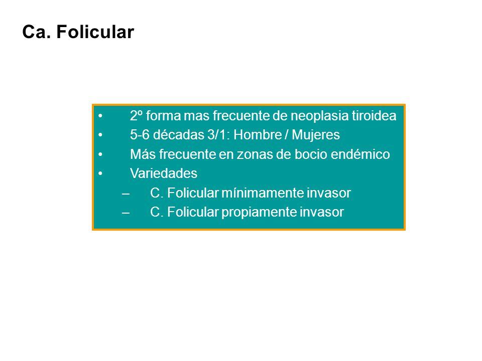 Ca. Folicular 2º forma mas frecuente de neoplasia tiroidea 5-6 décadas 3/1: Hombre / Mujeres Más frecuente en zonas de bocio endémico Variedades –C. F