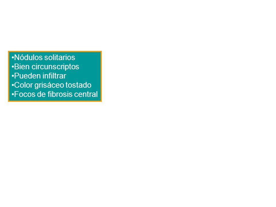 Nódulos solitarios Bien circunscriptos Pueden infiltrar Color grisáceo tostado Focos de fibrosis central