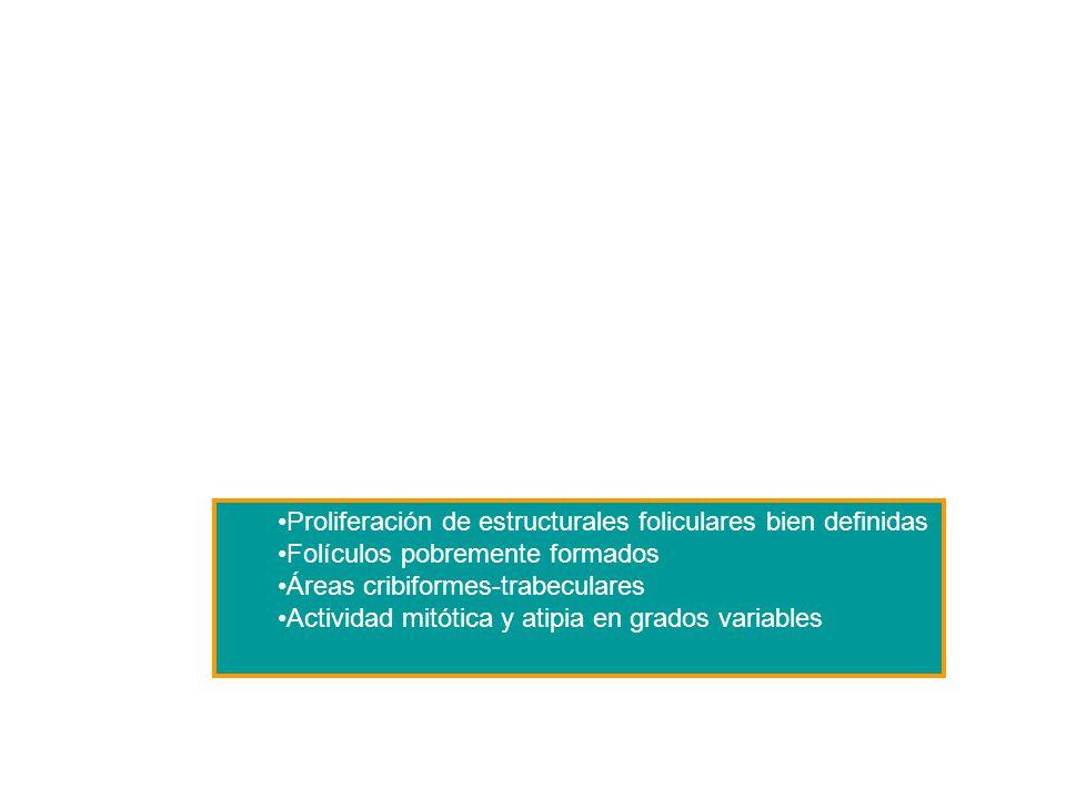Proliferación de estructurales foliculares bien definidas Folículos pobremente formados Áreas cribiformes-trabeculares Actividad mitótica y atipia en