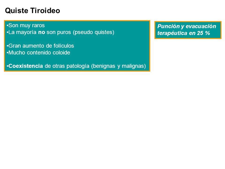 Quiste Tiroideo Son muy raros La mayoría no son puros (pseudo quistes) Gran aumento de folículos Mucho contenido coloide Coexistencia de otras patolog