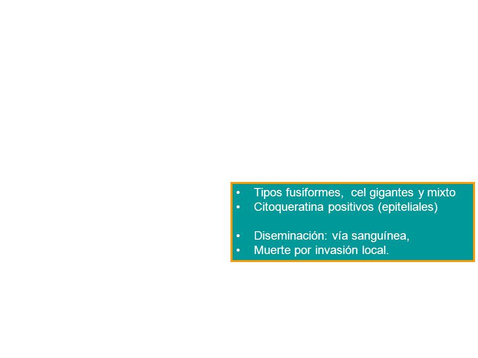 Tipos fusiformes, cel gigantes y mixto Citoqueratina positivos (epiteliales) Diseminación: vía sanguínea, Muerte por invasión local.