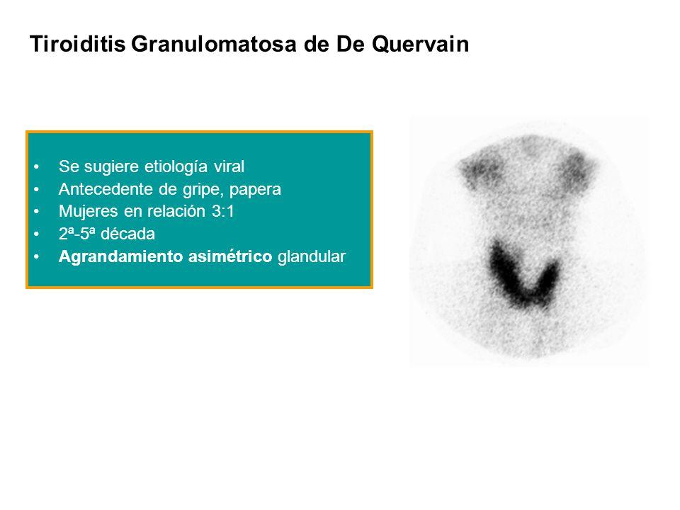 Tiroiditis Granulomatosa de De Quervain Se sugiere etiología viral Antecedente de gripe, papera Mujeres en relación 3:1 2ª-5ª década Agrandamiento asi