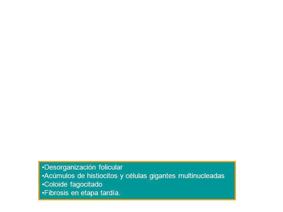 Bocio multinodular Hipertrofia Hiperplasia