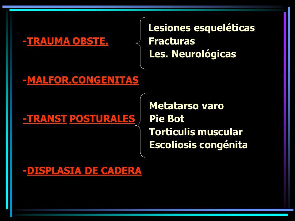 CABEZA Y CUELLO: -Hundimiento -Torticolis congénita
