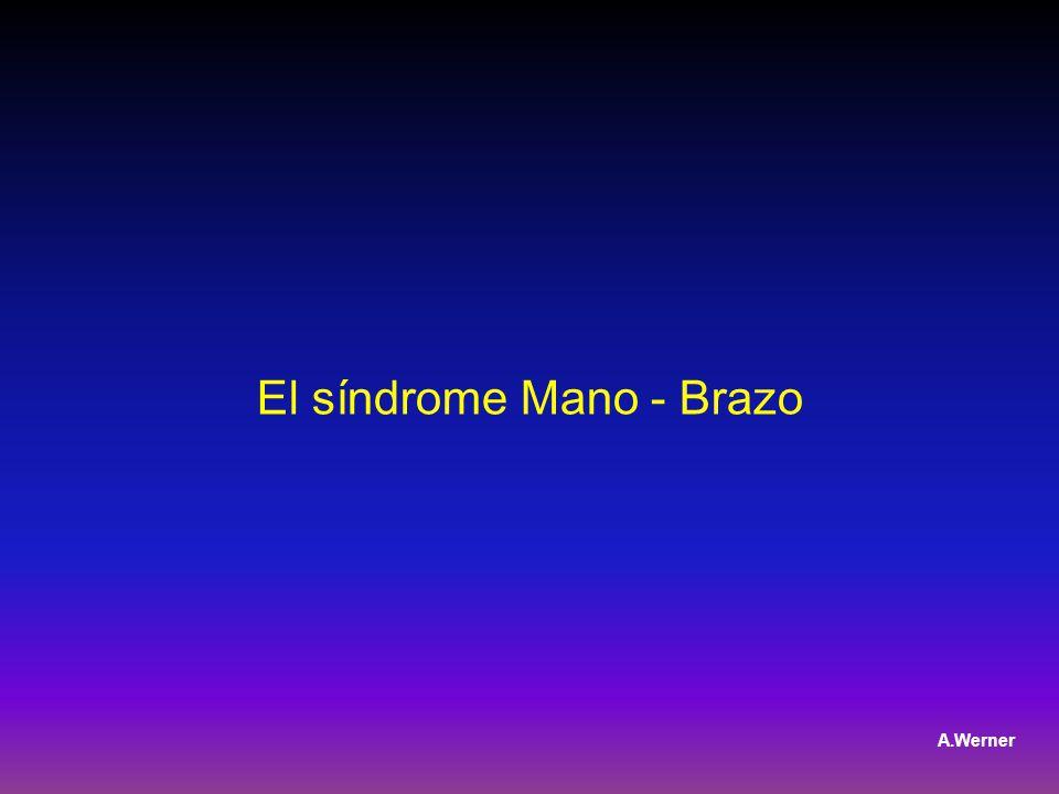 El síndrome Mano - Brazo A.Werner