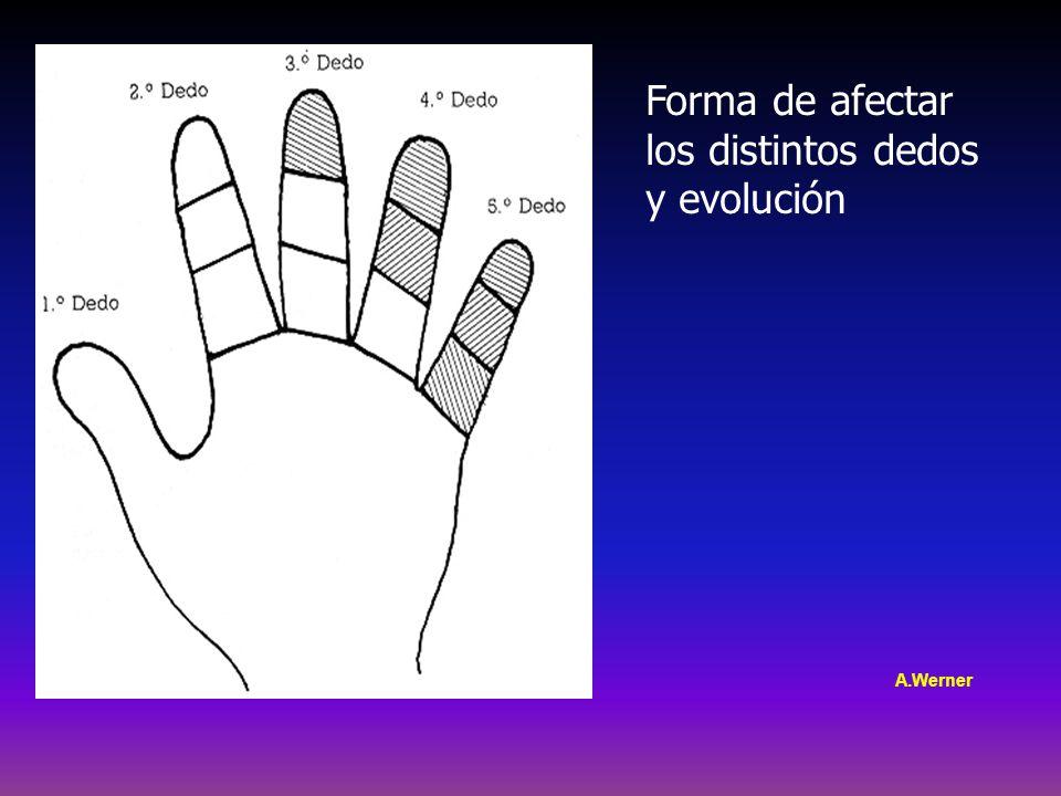 Forma de afectar los distintos dedos y evolución A.Werner