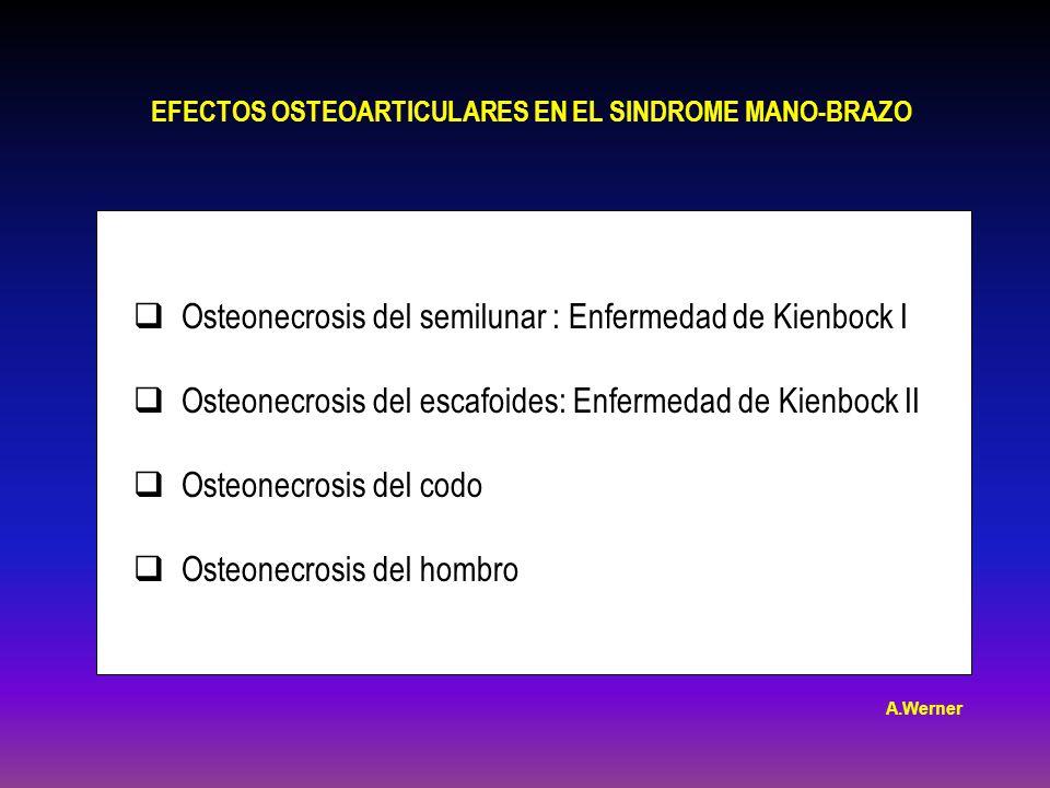Osteonecrosis del semilunar : Enfermedad de Kienbock I Osteonecrosis del escafoides: Enfermedad de Kienbock II Osteonecrosis del codo Osteonecrosis del hombro EFECTOS OSTEOARTICULARES EN EL SINDROME MANO-BRAZO A.Werner