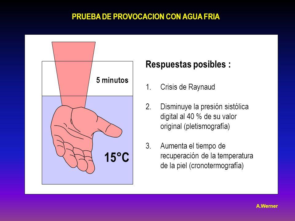 PRUEBA DE PROVOCACION CON AGUA FRIA 5 minutos 15°C Respuestas posibles : 1.Crisis de Raynaud 2.Disminuye la presión sistólica digital al 40 % de su valor original (pletismografía) 3.Aumenta el tiempo de recuperación de la temperatura de la piel (cronotermografía) A.Werner