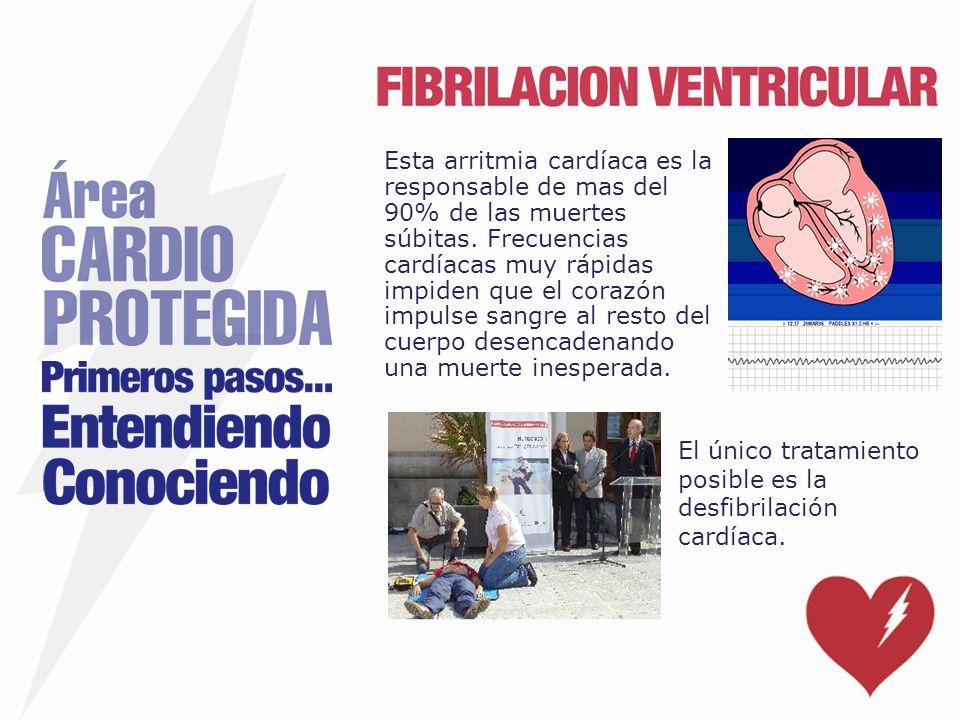 Esta arritmia cardíaca es la responsable de mas del 90% de las muertes súbitas. Frecuencias cardíacas muy rápidas impiden que el corazón impulse sangr