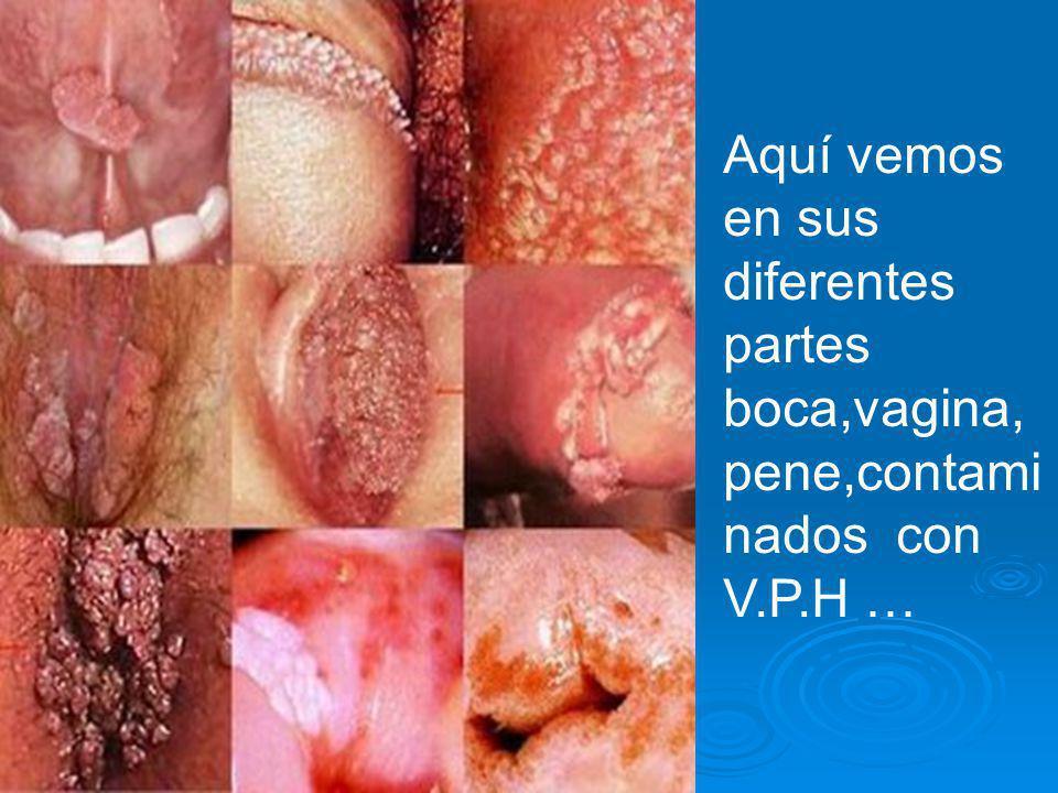 Aquí vemos en sus diferentes partes boca,vagina, pene,contami nados con V.P.H …