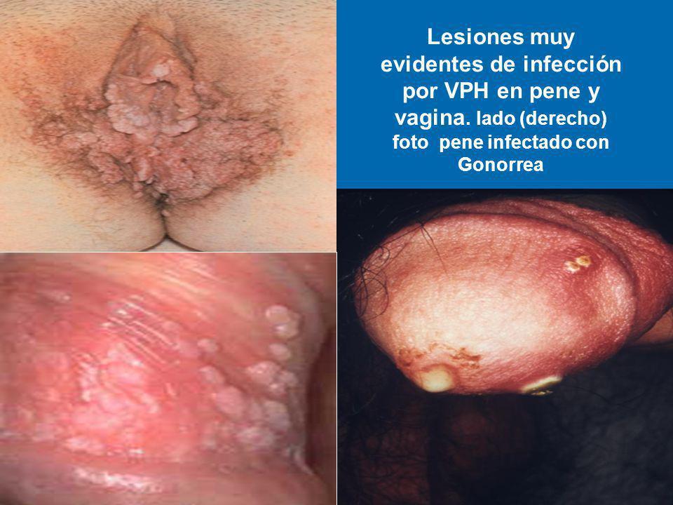 Lesiones muy evidentes de infección por VPH en pene y vagina. lado (derecho) foto pene infectado con Gonorrea