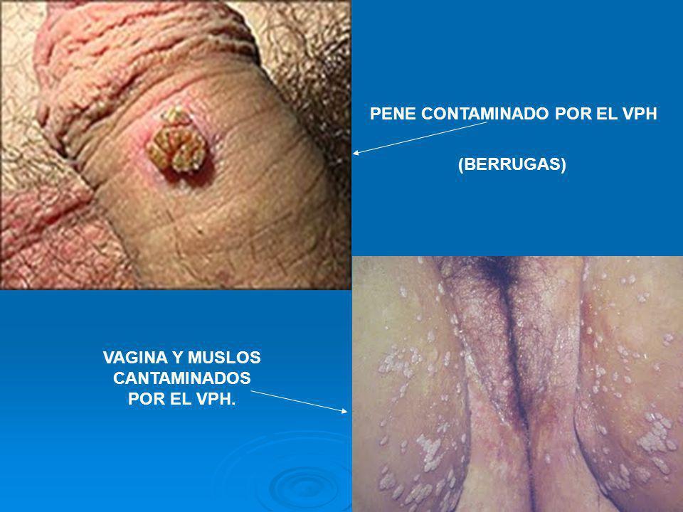 PENE CONTAMINADO POR EL VPH VAGINA Y MUSLOS CANTAMINADOS POR EL VPH. (BERRUGAS)