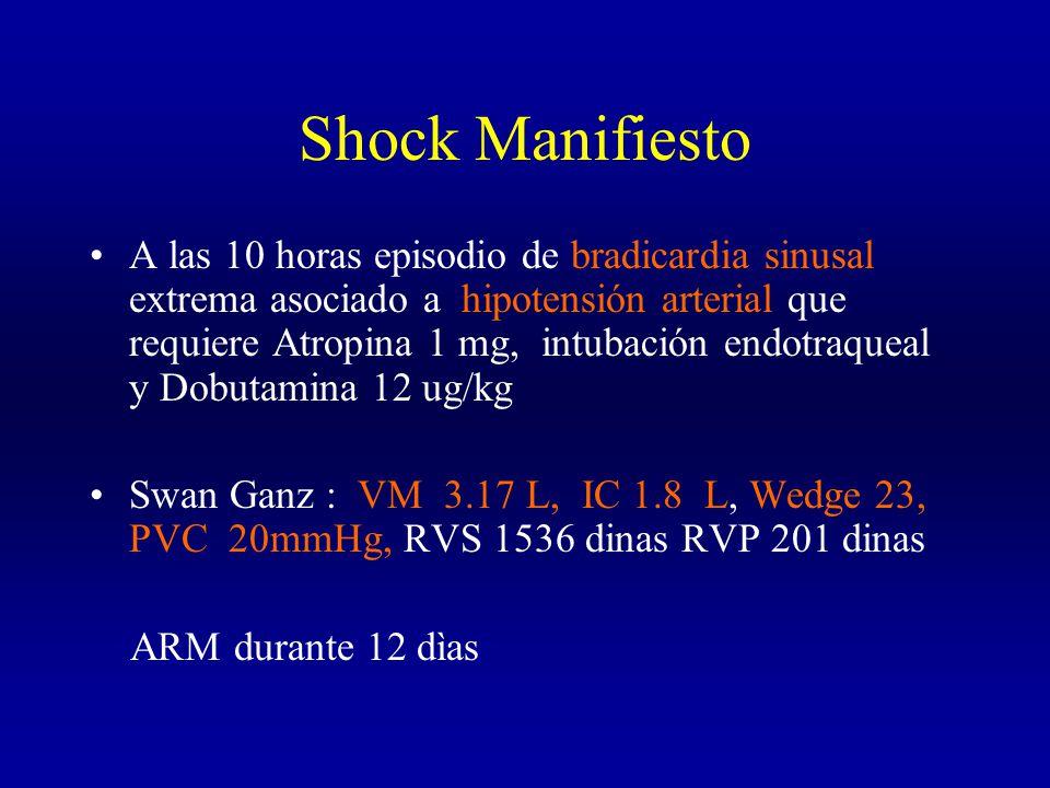 Shock Manifiesto A las 10 horas episodio de bradicardia sinusal extrema asociado a hipotensión arterial que requiere Atropina 1 mg, intubación endotraqueal y Dobutamina 12 ug/kg Swan Ganz : VM 3.17 L, IC 1.8 L, Wedge 23, PVC 20mmHg, RVS 1536 dinas RVP 201 dinas ARM durante 12 dìas