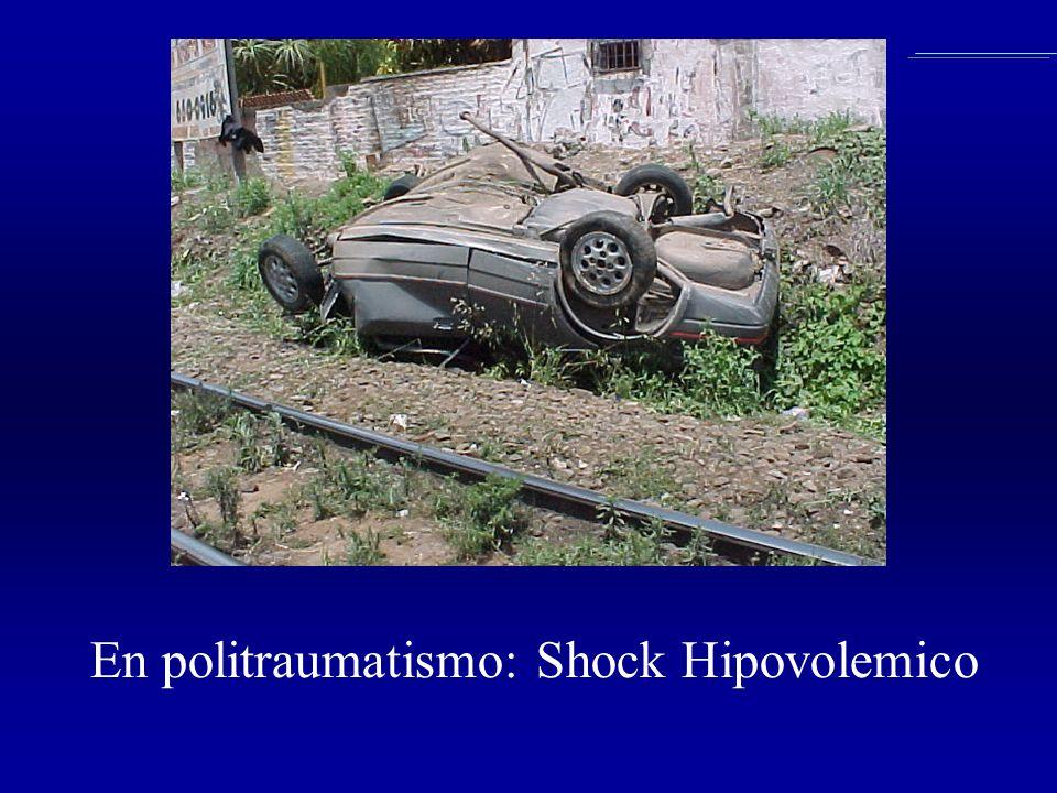 En politraumatismo: Shock Hipovolemico