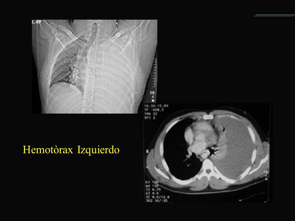 Hemotòrax Izquierdo