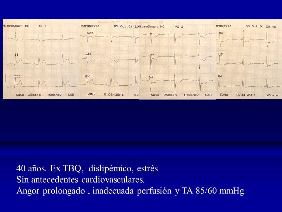 40 años.Ex TBQ, dislipémico, estrés Sin antecedentes cardiovasculares.