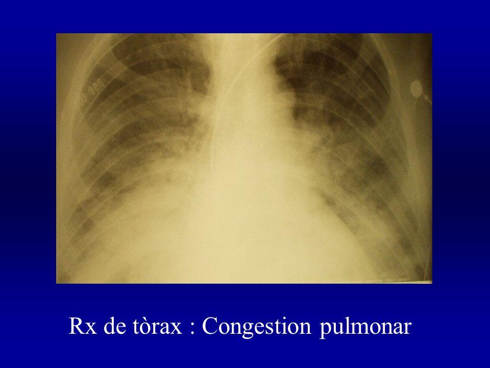 Rx de tòrax : Congestion pulmonar