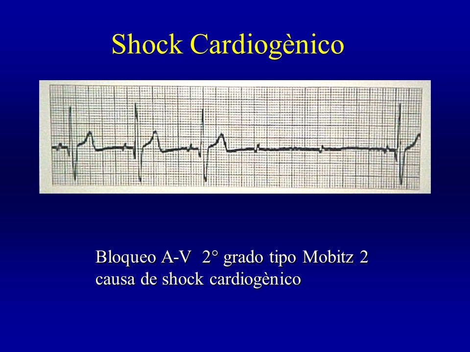 Bloqueo A-V 2° grado tipo Mobitz 2 causa de shock cardiogènico Shock Cardiogènico