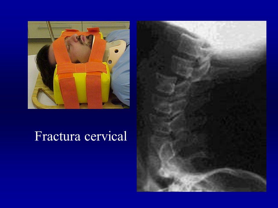 Fractura cervical