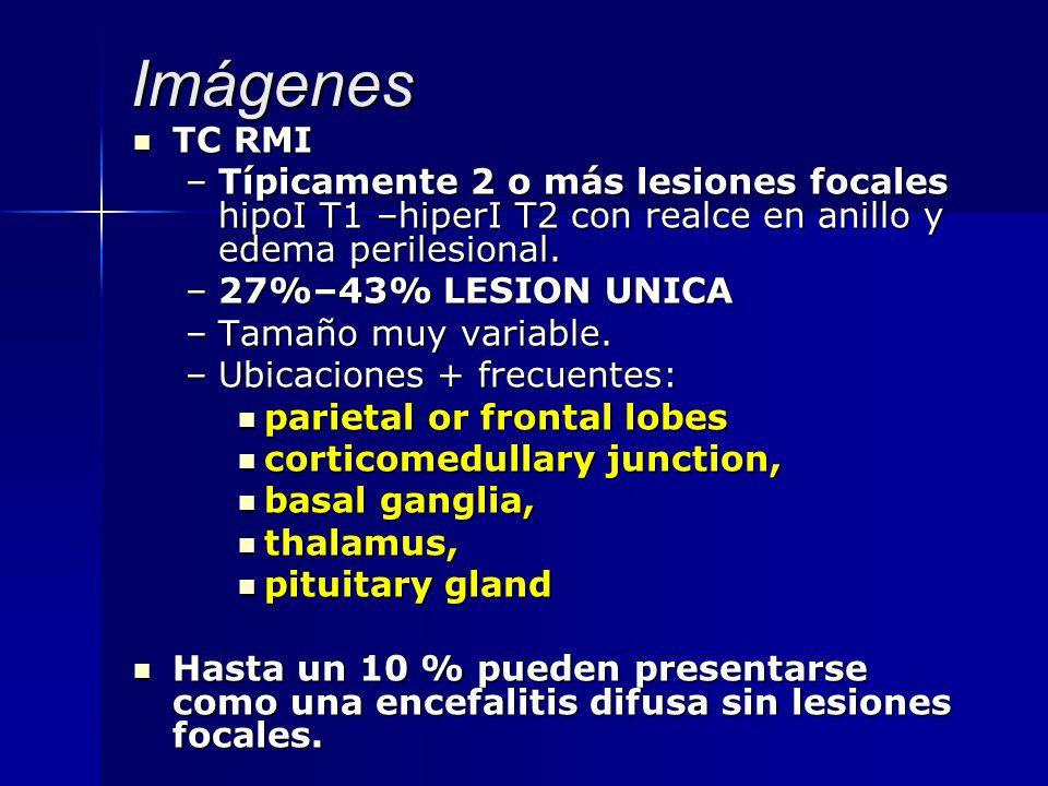 Imágenes TC RMI TC RMI –Típicamente 2 o más lesiones focales hipoI T1 –hiperI T2 con realce en anillo y edema perilesional. –27%–43% LESION UNICA –Tam