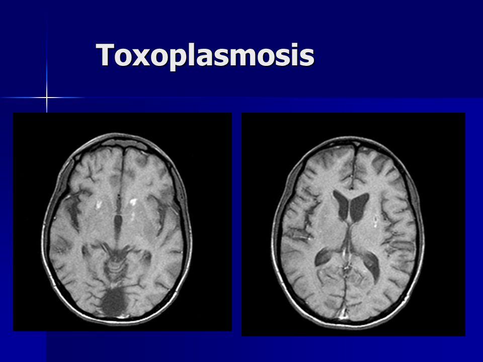 Toxoplasmosis Toxoplasmosis