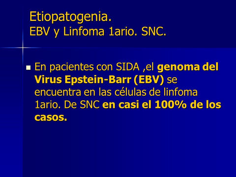 Etiopatogenia. EBV y Linfoma 1ario. SNC. En pacientes con SIDA,el genoma del Virus Epstein-Barr (EBV) se encuentra en las células de linfoma 1ario. De