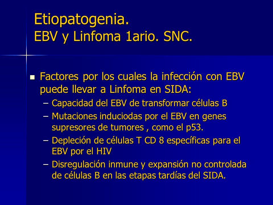 Etiopatogenia. EBV y Linfoma 1ario. SNC. Factores por los cuales la infección con EBV puede llevar a Linfoma en SIDA: Factores por los cuales la infec