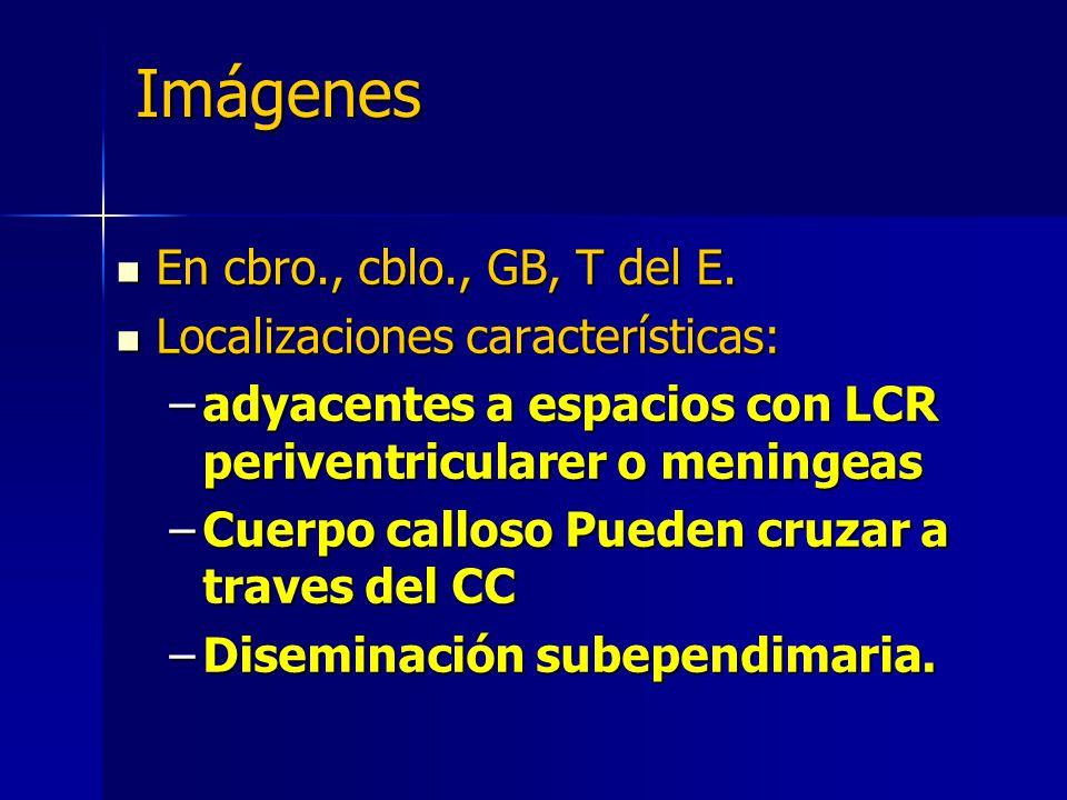 Imágenes En cbro., cblo., GB, T del E. En cbro., cblo., GB, T del E. Localizaciones características: Localizaciones características: –adyacentes a esp