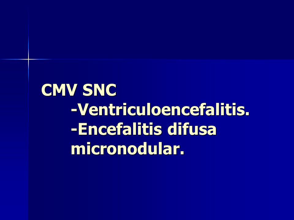 CMV SNC -Ventriculoencefalitis. -Encefalitis difusa micronodular.