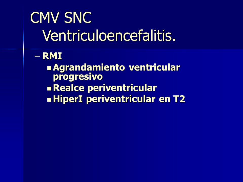 –RMI Agrandamiento ventricular progresivo Agrandamiento ventricular progresivo Realce periventricular Realce periventricular HiperI periventricular en T2 HiperI periventricular en T2 CMV SNC Ventriculoencefalitis.