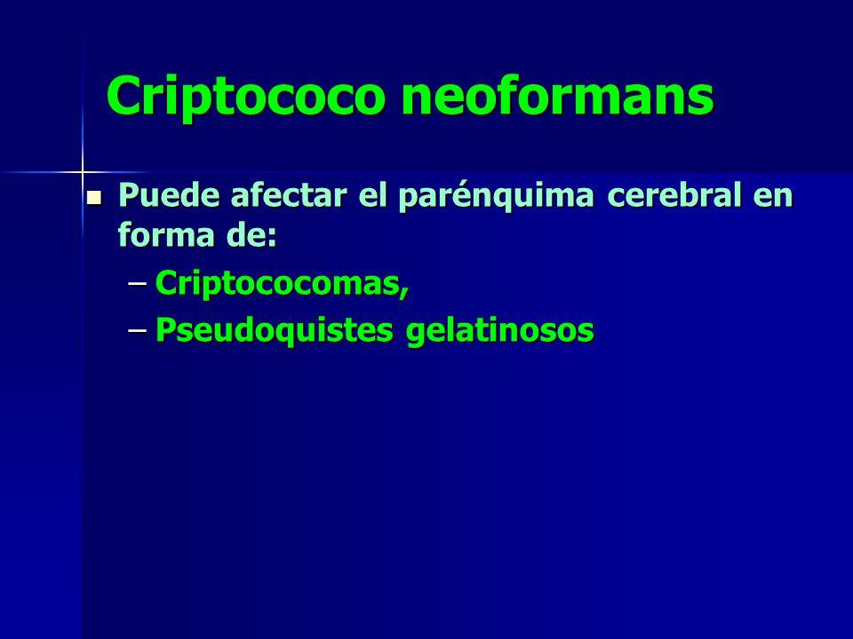 Criptococo neoformans Puede afectar el parénquima cerebral en forma de: Puede afectar el parénquima cerebral en forma de: –Criptococomas, –Pseudoquistes gelatinosos