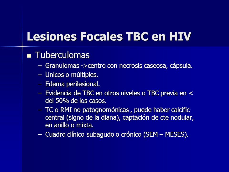 Lesiones Focales TBC en HIV Tuberculomas Tuberculomas –Granulomas ->centro con necrosis caseosa, cápsula. –Unicos o múltiples. –Edema perilesional. –E