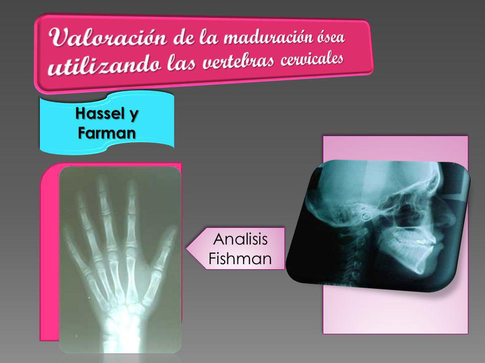 Hassel y Farman Analisis Fishman