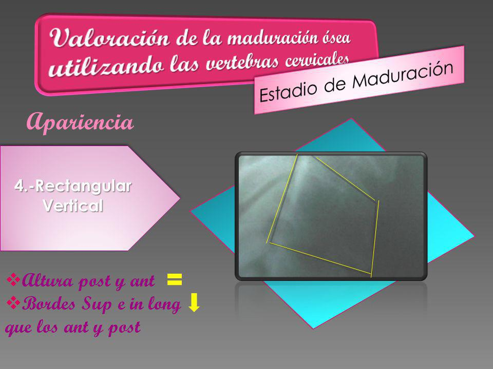 Apariencia 4.-RectangularVertical Altura post y ant Bordes Sup e in long que los ant y post
