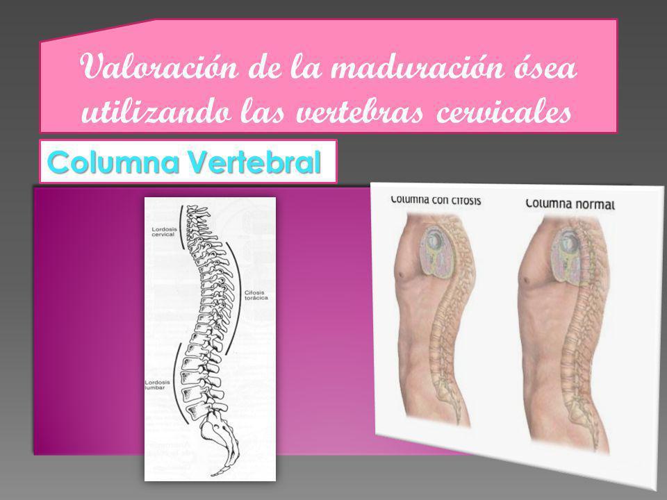 Valoración de la maduración ósea utilizando las vertebras cervicales Columna Vertebral