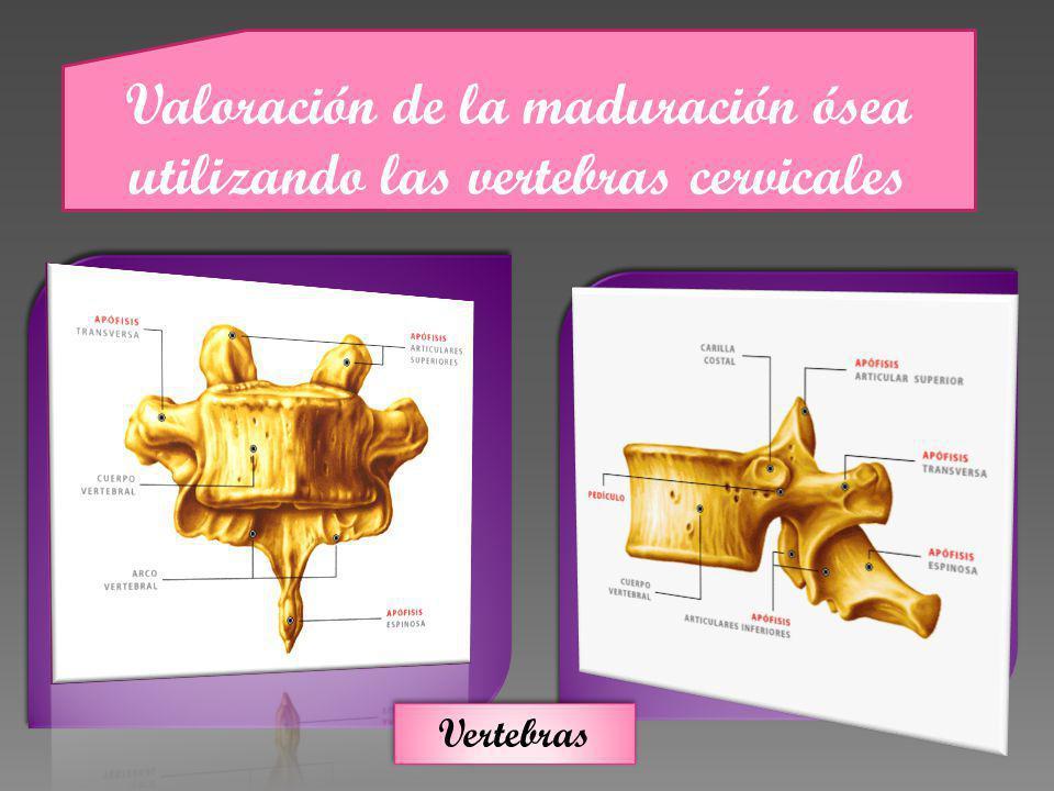 Valoración de la maduración ósea utilizando las vertebras cervicales Vertebras