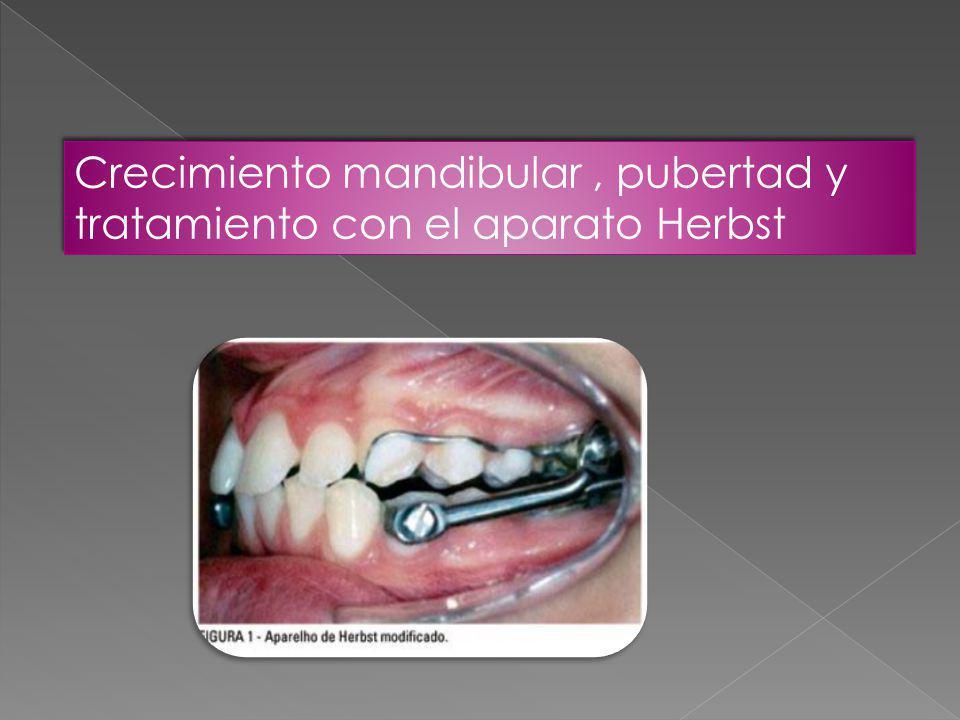 Crecimiento mandibular, pubertad y tratamiento con el aparato Herbst