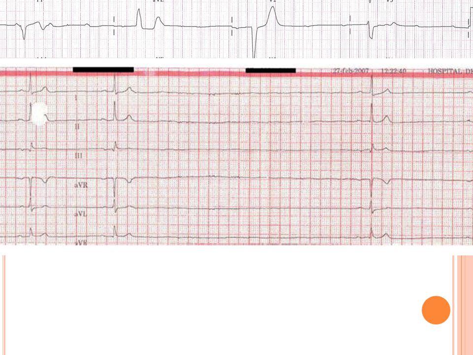 C ASO CLÍNICO Se habla con cardiología y se intenta revertir a RS mediante cardioversión eléctrica Se le aplica una descarga y el ECG de salida es est