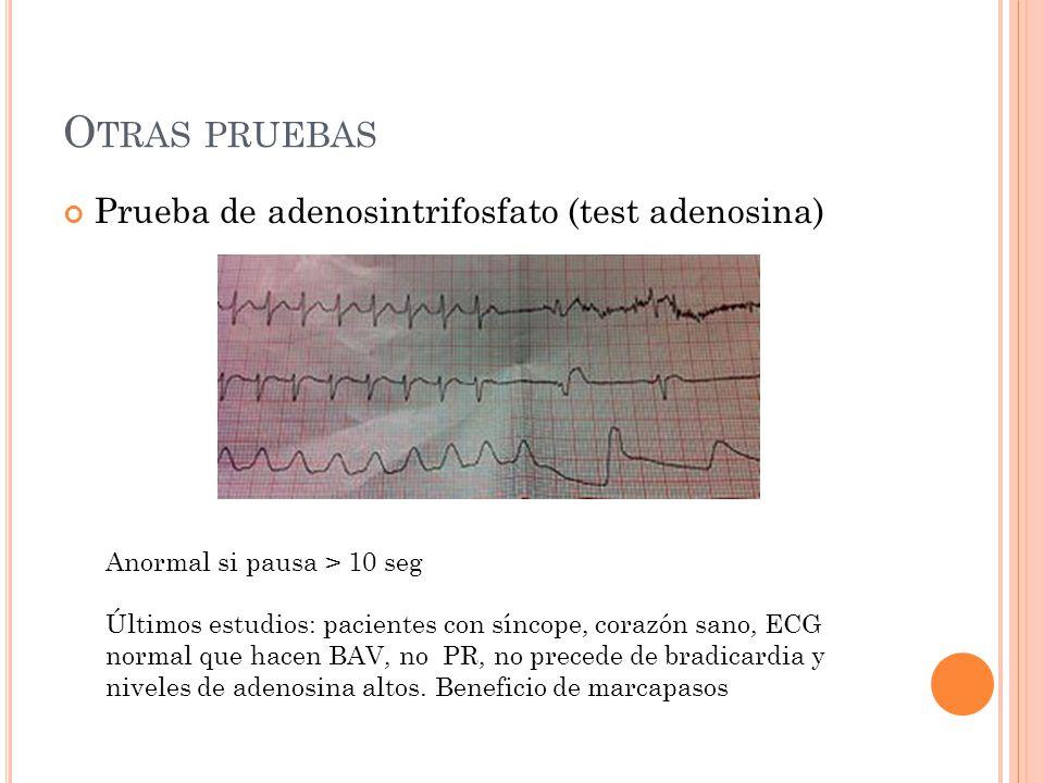 O TRAS PRUEBAS Prueba de adenosintrifosfato (test adenosina) Anormal si pausa > 10 seg Últimos estudios: pacientes con síncope, corazón sano, ECG norm