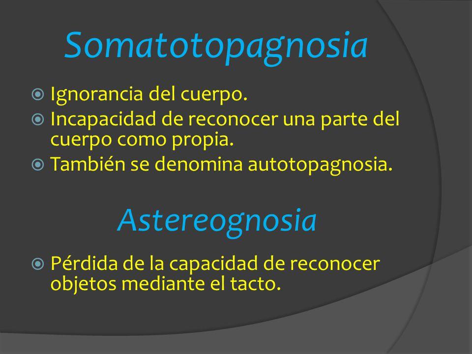Somatotopagnosia Ignorancia del cuerpo. Incapacidad de reconocer una parte del cuerpo como propia. También se denomina autotopagnosia. Astereognosia P