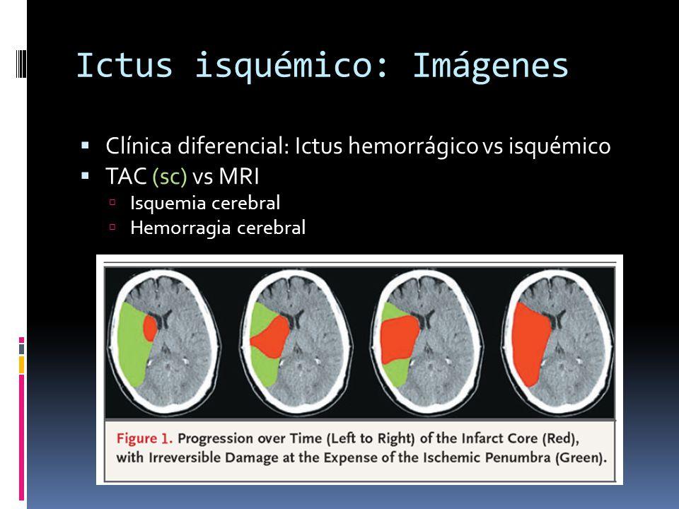 Ictus isquémico: Imágenes Clínica diferencial: Ictus hemorrágico vs isquémico TAC (sc) vs MRI Isquemia cerebral Hemorragia cerebral