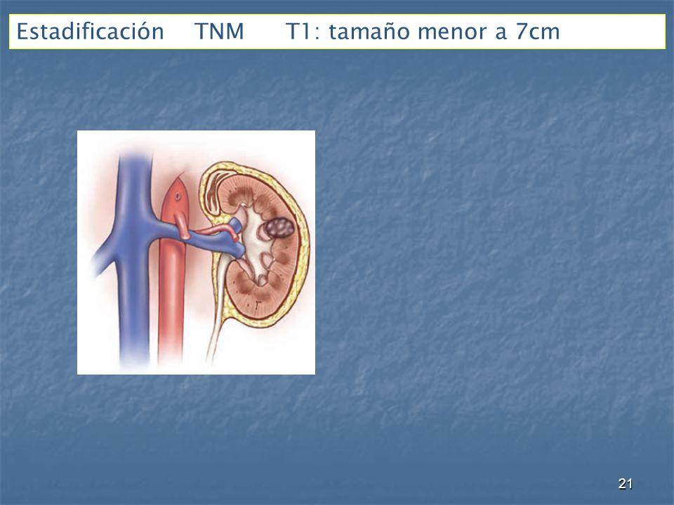 Estadificación TNM T1: tamaño menor a 7cm 21