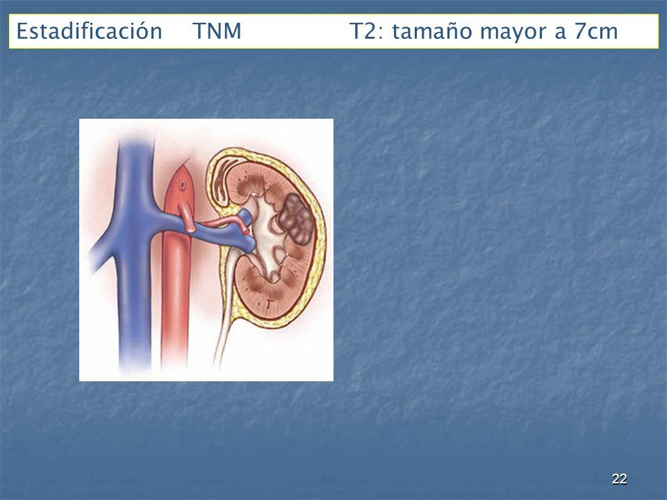 Estadificación TNMT2: tamaño mayor a 7cm 22